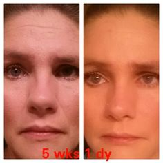 Crazy results with my nerium night cream. Message me or go to terressanelson.nerium. com