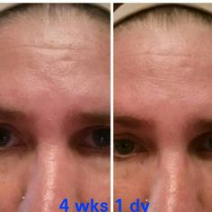 Ok people I can't photo shop my own face! You would know if you saw me. Nerium AD works!  This is not a scam!  A facelift is 10, 000 easy. This is 80.00 a month. If I saved that every month that comes out to 960.00 a year. It would take 10 years to save for a lift. This is a much better deal. Give nerium 1 year they will give you 10 back!  Terressanelson.Nerium.com