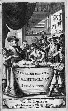 [Frontispice] Dissection. Médecins et malades . 17e siècle. SCULTETUS, Johannes / SCHULTES, Johann / SCULTET, Jean. Armamentarium chirurgicum. Edition : La Haye : Vlacq, 1657.
