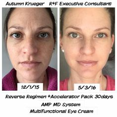 """I have never felt MORE confident in my own skin. My 'before' picture surprises me...I didn't realize how dull my skin looked, or how tired my eyes were. I've always had a clear complexion (just not an even one), and assumed my current products from a respected dermatology office were the best of the best. I was proven WRONG!!  My complexion is brighter, my skin tone has never been this even, and my pores never this small. No longer do you see my dark circles, crows feet or the """"stress…"""