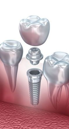 Dental Implants are the Best Solution for Missing Teeth