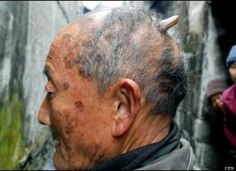 """You don't have to be devilish to have a horn on your head. China's Huang Yuanfan, 84, says that over the past two years, a small bump on the back of his head has turned into a horn that's nearly 3 inches long. """"Doctors say they don't know what caused it, but if they try to take it off it will just come back,"""" he told the press. """"I try to hide it beneath a hat, but if it gets much longer it will be sticking out the top."""""""