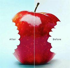 Dentaltown - Before and After Orthodontics