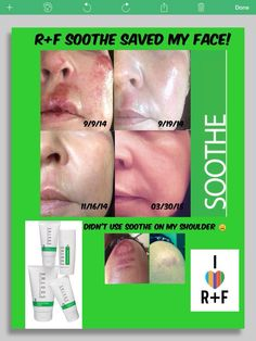 Soothe results ROCK!!!!