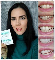 Dupa 5 zile de utilizare ale benzilor IWhite2 Instant,dintii mei sunt vizibil mai albi cu cateva nuante,foarte stralucitori si mai puternici.Acestea pot fi folosite in siguranta,deoarece nu contin peroxid de hidrogen.Benzile IWhite2 Instant sunt usor de aplicat,dupa 20 de min. se vad rezultatele. Pasta de dinti curata foarte bine,diminueaza sensibilitatea gingiilor si previne aparitia petelor.Apa de gura improspateaza respiratia instantaneu si are efect intens de stralucire…