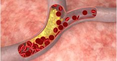 Five Myths about Cholesterol – Lompoc Valley Medical Center Primary Care Physician, High Fiber Foods, Keeping Healthy, Healthy Food Choices, Cardiovascular Disease, Cholesterol Levels, Blood Vessels, Medical Center, Saturated Fat