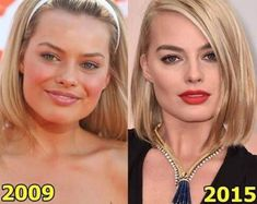 Facial Cosmetic Surgery- Plastic Surgery & Celebs Before and After Pictures Margot Robbie before and after a plastic surgery Margot Robbie before and after . Plastic Surgery Before After, Botox Before And After, Celebrities Before And After, Rhinoplasty Before And After, Plastic Surgery Photos, Celebrity Plastic Surgery, Heidi Montag Plastic Surgery, Megan Fox Plastic Surgery, Short Hairstyles