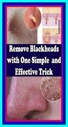 Get Rid Of Blackheads, Pimples, Beauty Tips And Secrets, Beauty Hacks, Home Remedies, Natural Remedies, Super Healthy Kids, Blackhead Remover, Radiant Skin