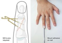 Designing conceptual stuff is easy. Designing real world products that affect and improve lives is the real challenge. The Bend is a medical finger-splint with a Clean And Press, Hand Therapy, Wedding Rings Simple, Design Department, Yanko Design, Clever Design, Really Cool Stuff, Finger, Medicine