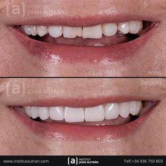 30 Mejores Imágenes De Diseño De Sonrisa En 2020 Diseños De Sonrisa Estetica Dental Carillas Dentales