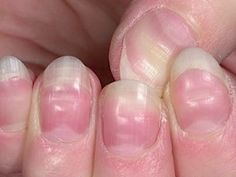 Our bodies work in mysterious ways. While we can't definitively diagnose ourselves with medical conditions, our nails can definitely alert us to early signs of physical…