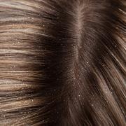 Egy hatékony nyaktorna, amitől a szédülésed és a fejfájásod is elmúlhat - Blikk Rúzs Nap, Minden, Long Hair Styles, Beauty, Long Hairstyle, Long Haircuts, Long Hair Cuts, Beauty Illustration, Long Hairstyles