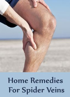 10 Home Remedies For Spider Veins