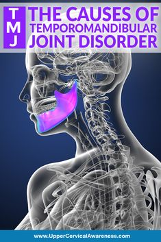 Temporomandibular joint disorder (often abbreviated as TMJ, TMD, or TMJD) is estimated to affect somewhere between 5 and of people. That makes TMJ . Sore Jaw, Fibromyalgia Syndrome, Tight Neck, Atm, Jaw Pain, Facial Muscles, Neck And Back Pain, Disorders, Wellness