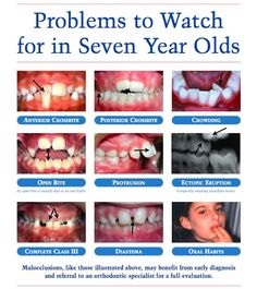 Dental health tips to indication growing child teeth with problem and solution to care of dental health discussion with 7 tips during growing child teeth.http://www.dantah.com/aboutus.php?type=2