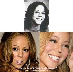 Celebs with Bad Plastic Surgery | Did Mariah Carey get a nose job rhinoplasty? (image hosted by ...