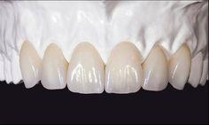 Trite Dental Crowns Before And After Tips Dental Implant Surgery, Teeth Implants, Dental Art, Dental Teeth, Happy Dental, Dental Anatomy, Dental Technician, Perfect Teeth, Dental Veneers