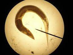 enterobius vermicularis huevo - Buscar con Google
