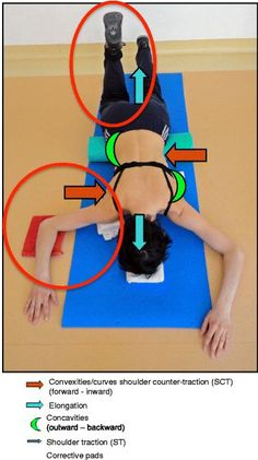 """In recent decades, there has been a call for change among all stakeholders involved in scoliosis management. Parents of children with scoliosis have complained about the so-called """"wait and see"""" approach that far too many doctors use when evaluating children's scoliosis curves between 10° and 25°. Observation, Physiotherapy Scoliosis Specific Exercises (PSSE) and bracing for idiopathic scoliosis during growth are all therapeutic interventions accepted by the 2011 International Society on…"""