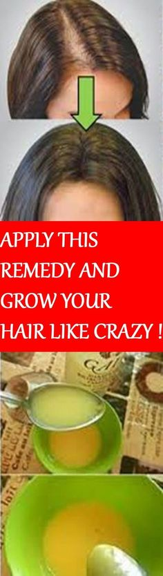LEAVE ALL DOCTORS SURPRISED. APPLY THIS REMEDY AND GROW YOUR HAIR LIKE CRAZY !