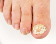 Foot Fungus Top 15 – Best Toe Fungus Treatment Over The Counter – The Truth Is You Simply Do Not Know About Toenail Fungus Ingrown Toenail Treatment, Fingernail Fungus Treatment, Toenail Fungus Treatment, Ingrown Toe Nail, Toenail Fungus Vinegar, Toenail Fungus Remedies, Fungus Toenails, Short Nails, Curly Hair