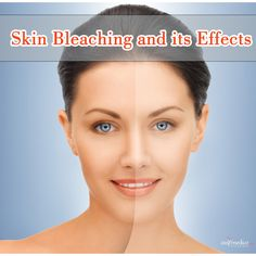 #Skin bleaching is a good option to get rid of the #black #spots or any other type of #spots on #skin. #skincare #beauty