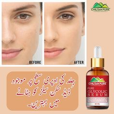 Gentle Exfoliator Improve Skin Tone Treat Acne Sheds Dead Skin Cells Reduce Acne Scarring & Inflammation Safe for All Skin Types #ChiltanPure #organic #purity #treatacne #serum Glycolic Acid, How To Treat Acne, Serum, Lipstick, Skin Care, Pure Products, Dead Skin, Sheds