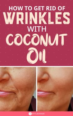 How To Get Rid Of Wrinkles Using Coconut Oil: Though there are various cosmetic treatments to reduce wrinkles, coconut oil is the safest way to go. It boosts the production of collagen and encourages the regeneration of cells in your… Continue Reading → Cosmetic Treatments, Skin Treatments, Coconut Oil Treatments, Best Skin Care Regimen, Skin Care Tips, Coconut Oil Uses For Skin, Coconut Oil Facial, Coconut Oil Beauty, Skin Care