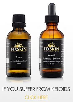 Fixskin | Home of America's Premier Keloid and Razor Bump Removal Products!