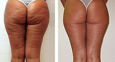 How to lose cellulite around knees essential oil for cellulite and saggy skin,la cellulite aqueuse effective cellulite treatment,cellulite sauna cellulite e ultrasuoni forum. Combattre La Cellulite, Cellulite Cream, Cellulite Remedies, Reduce Cellulite, Creme Anti Celulite, Diy Beauty, Beauty Hacks, Uses For Coffee Grounds, Vicks Vaporub