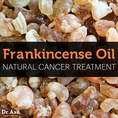 New research is proving that frankincense essential oil is more effective than chemotherapy at killing cancer. Frankincense cancer natural treatments are effective.