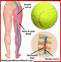 How to Use Tennis Ball to Relieve Sciatic Pain and Back Pain