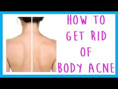 FAQ: How to Get Rid of Body Acne, (Back acne, chest acne, leg acne, arm ...