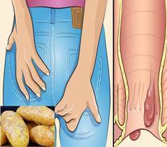Beschwerden mit den Hämorrhoiden…Wenn es am Hinterteil anfängt zu jucken, solltest du in deine Küche gehen. Dort findest du einiges, was hilft. | njuskam!