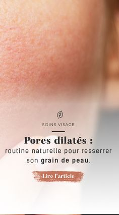 Large pores: natural routine for firming the skin – 30 Day Beauty Tips Beauty Care, Diy Beauty, Beauty Hacks, Dilated Pores, Haut Routine, How To Grow Eyebrows, Skin Tag Removal, Get Rid Of Blackheads, Beauty Tips For Face