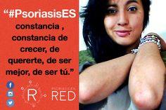 Karol comparte su foto para #PsoriasisEs. #Psoriasis #ArtritisPsoriásica #Piel #Skin