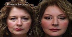 Baking Soda Mask Against Eye Bags, Dark Circles and Swollen Eyelids – Recipe - Thinkers Place Swollen Eyelid, Baking Soda Mask, Ver Video, Beauty Hacks Nails, Beauty Tricks, Healthy Skin Tips, Natural Antibiotics, Vicks Vaporub, Skin Firming