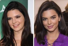 10 Shocking Pics of Celebrities Before And After Plastic Surgery - Care - Skin care , beauty ideas and skin care tips Kendall Jenner Plastic Surgery, Celebrity Plastic Surgery, Celebrities With Plastic Surgery, Plastic Surgery Gone Wrong, Madison Beer Plastic Surgery, Megan Fox Plastic Surgery, Bad Plastic Surgeries, Eyelid Surgery, Nose Surgery