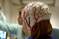 #Epilepsy patients waiting more than a year for #EEG in Australia • #SUDEP #neurology #health