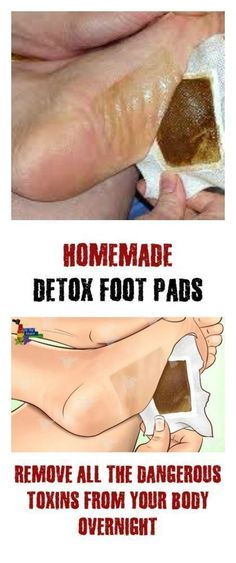 PREPARE HOMEMADE DETOX FOOT PADS AND REMOVE ALL THE TOXINS FROM YOUR BODY OVERNIGHT!