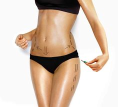 Liposuction in New York can address many areas of the body. Laser lipo New York centers offer free consultations. Fat Transfer To Buttocks, Body By Vi, Workout Bauch, Mommy Makeover, Loose Skin, Tummy Tucks, Body Wraps, Body Sculpting, Liposuction