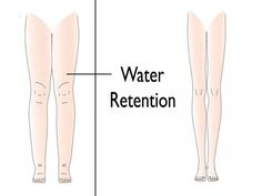 """Water retention, also known as fluid retention, refers to an excessive buildup of fluid in the circulatory system, body tissues, or cavities in the. Banana Benefits, Matcha Benefits, Coconut Health Benefits, Water Retention Remedies, Safe Cosmetics, Tomato Nutrition, Calendula Benefits, Body Tissues, Circulatory System"
