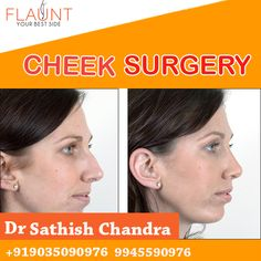 Cheek Surgery. Please visit us- www.cosmeticsurgerymangalore.com