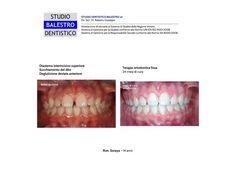 Casi clinici ortodontici Diastema interincisivo superiore http://www.studiodentisticobalestro.com/2013/10/malocclusione-con-diastemi-dentali.html