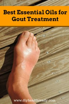 These best essential oils for gout are proven to help treat pains and aches in the body naturally, without surgery or any medical procedure. How To Treat Gout, How To Cure Gout, Essential Oils For Gout, Essential Oil Blends, Natural Gout Treatment, Holistic Treatment, Gout Relief, Pain Relief, Gout Remedies
