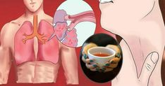 Every Sip of This Tea Clears Your Lungs of Mucus, Toxins and Inflammation Natural Asthma Remedies, Health Remedies, Perder 10 Kg, Chest Congestion, Look Younger, Immune System, Lunges, Home Remedies, Health Tips