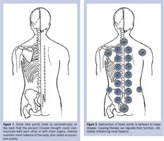 Acupuncture is a way of providing relief from a variety of ailments and for improving health. Find out how you can slow down the aging process with acupuncture. Cupping Points, Acupuncture Points, Acupressure Points, Cupping Therapy, Massage Therapy, Alternative Health, Alternative Medicine, Cupping Massage, Trigger Points