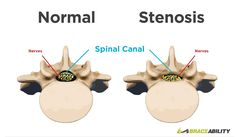 What is spinal stenosis? Spinal stenosis is the narrowing of the open spaces in your spine leading to pressure on your spinal cord and the nerves that travel through it. This common back injury can occur in your lumbar thoracic & cervical region of you Spinal Stenosis Surgery, Cervical Spinal Stenosis, Spinal Cord Injury, Spinal Stenosis Treatment, Narrowing Of The Spine, Cauda Equina Syndrome, Spinal Canal, Radiculopathy, Spine Health
