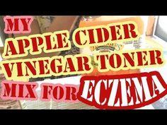 Apple Cider Vinegar Face Toner for Eczema and Sensitive Skin - Battle Eczema Apple Cider Vinegar Cellulite, Apple Vinegar, Organic Apple Cider Vinegar, Apple Cider For Face, Homemade Apple Cider, Tumeric Hair, Witch Hazel Toner, Avocado Face Mask, Dry Face