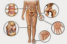 Food for Arthritis. Home remedies for arthritis treatment. How to get rid of rheumatoid arthritis fast . Natural ways to treat joint pain. Diet for arthritis Herbal Remedies For Arthritis, Types Of Arthritis, Rheumatoid Arthritis, Health Remedies, Arthritis Relief, Pain Relief, Knee Arthritis, Homeopathic Remedies, Arthritis Remedies